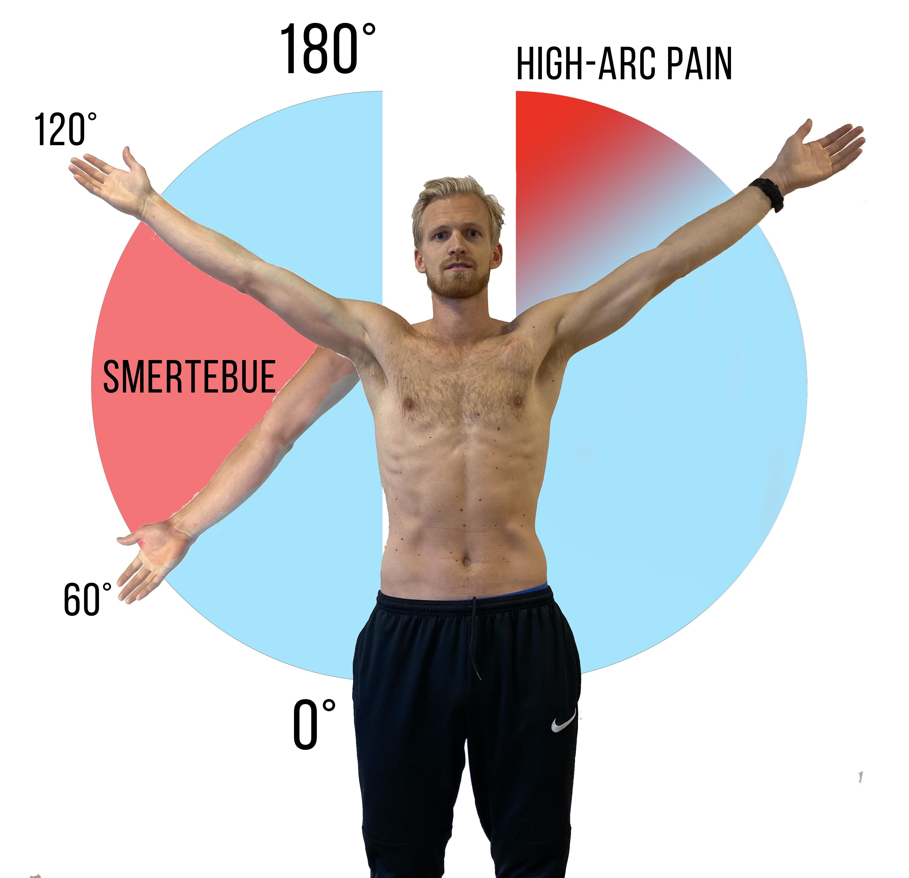 AC-leddssmerter er typisk forverrende ved elevasjon og adduksjon